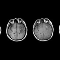 brain_injury_progress_web