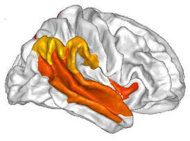 asd-brain_1