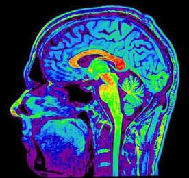 brain-jet
