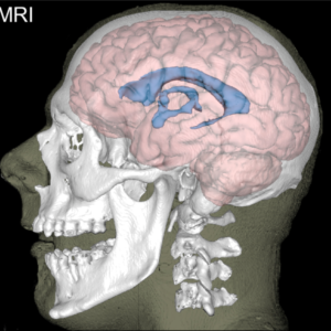 2019_brain_segmentation_figure